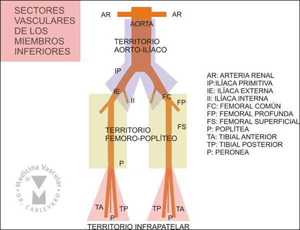 Medicina Vascular / intervencionionismo minimamente invasivo